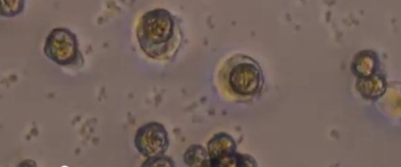 hiv-vaccine-microspheres