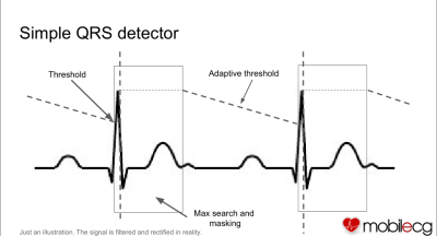 qrs_extraction