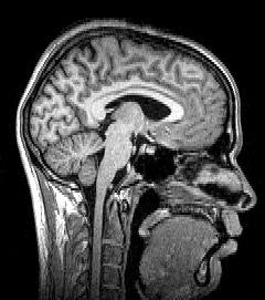 Sagittal_brain_MRI