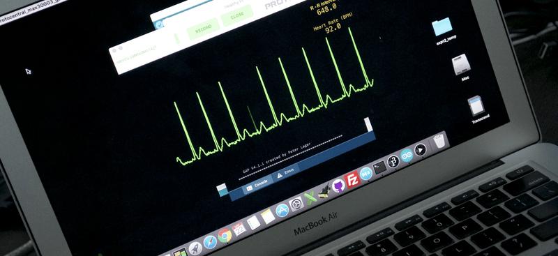 Easy-Peasy Heart Monitor   Hackaday