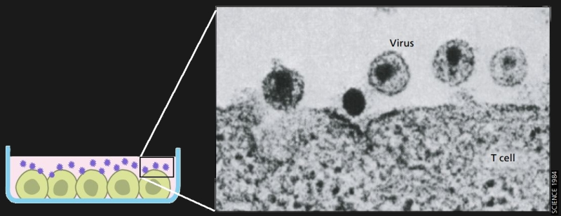 Electron microscope image of HIV budding from T cells