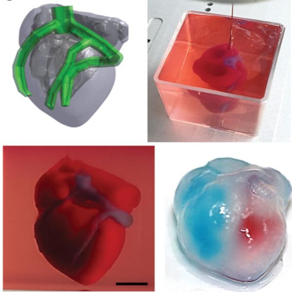 hackaday.com - Pedro Umbelino - 3D Printing a Real Heart