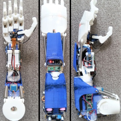 Side views of the 3D printed prosthesis arm.