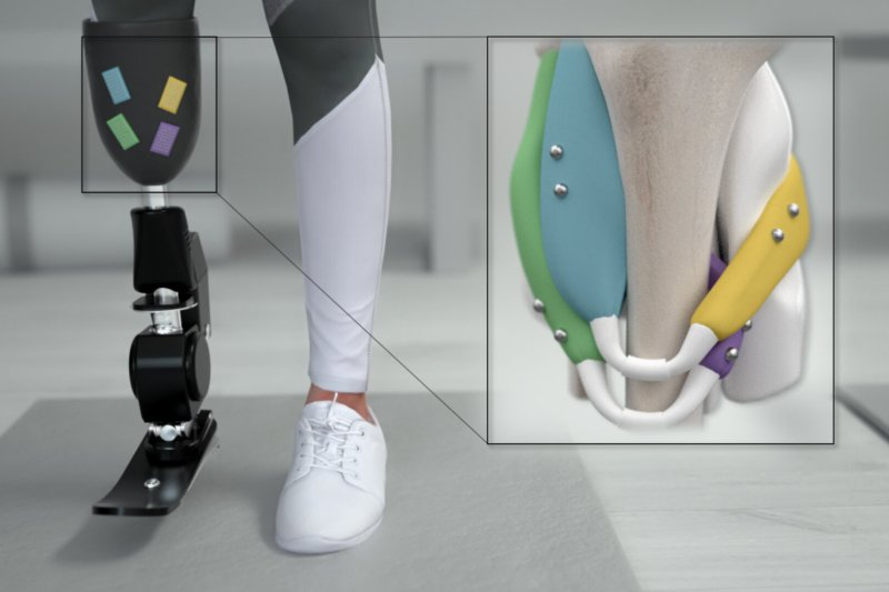 Tiny ball magnets implanted in muscles could provide much better control over prosthetics.